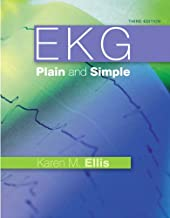 Best EKG Books That Will Hook You