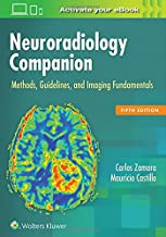 Best Neuroradiology Books: The Ultimate Collection